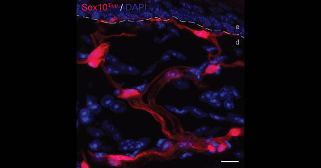 Scientists have discovered a network of pain-sensing cells (red) in the skin. Image credit - Laura Calvo