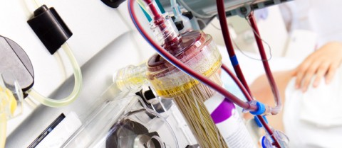 An apheresis machine similar to the one used by CTCtrap to filter out cancer cells from the blood. © Shutterstock/ beerkoff