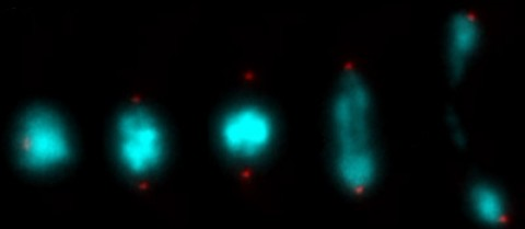 The way mutant yeast cells split could shed light on miscarriages in humans. Image courtesy of Dr Kazu Tomita, University College London