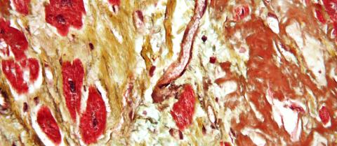 cardiovascular disease heart tissue