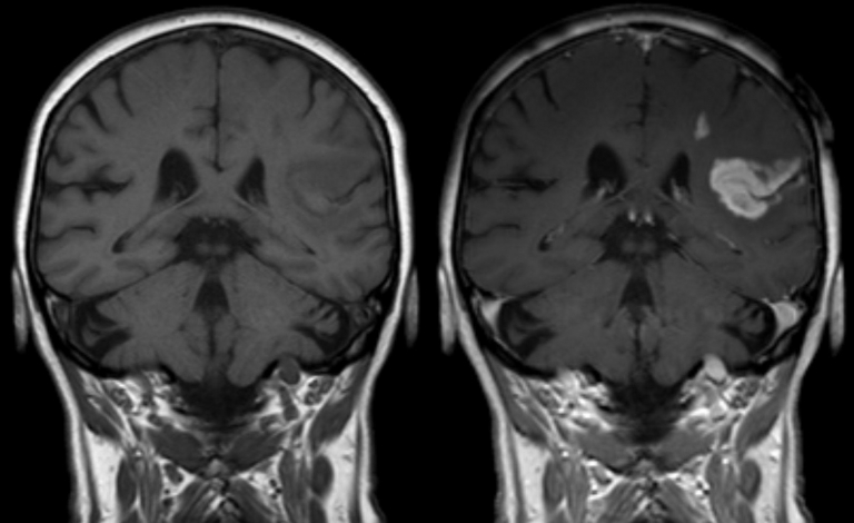 Scientists are working on overcoming the protective blood-brain barrier to better treat conditions such as stroke or brain injuries. Image credit - Hellerhoff, licensed under CC BY-SA 3.0