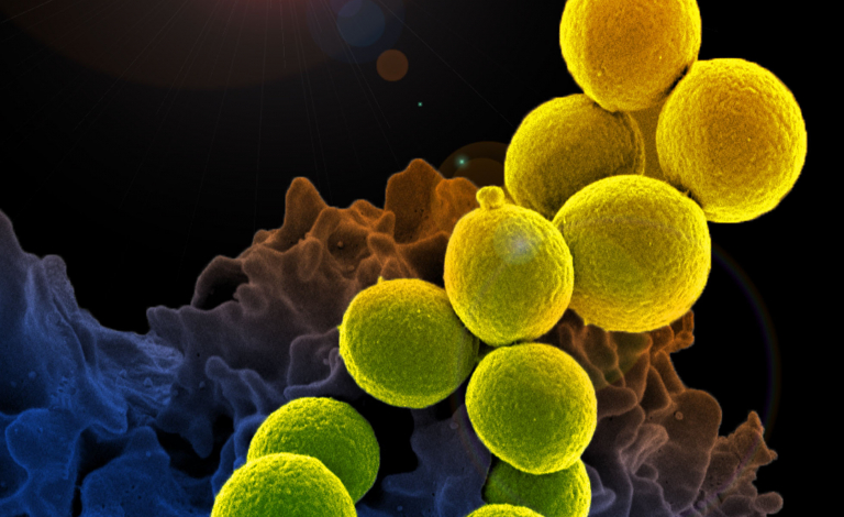 Methicillin-Resistant Staphylococcus aureus (MRSA). Image credit - NIAID, licensed under CC BY 2.0