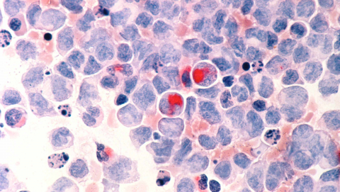 Early diagnosis of acute myelocytic leukemia (AML) paves the way for treatment. Image Credit: National Cancer Institute
