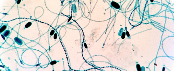 Genetically altered photosynthetic bacteria can convert sunlight into fuel three times as effectively as plants. Image: 'Clyndrospermum (Cyanobacteria)' by Matthewjparker is licensed under CC BY-SA 3.0