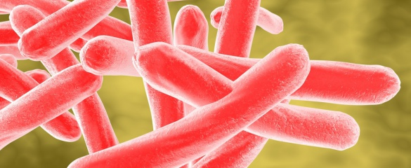 A third of the world's population is infected with the bacteria that causes TB. Credit: Shutterstock/ Kateryna Kon