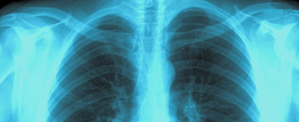 An X-ray image of a person's lungs and chest. © kravka / Shutterstock