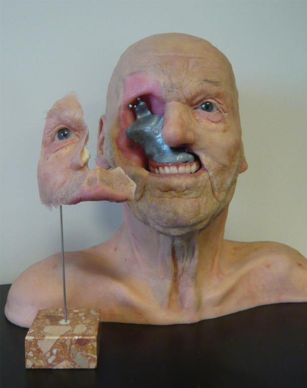 A model created by anaplastologist Jan De Cubber and based on a 3D-printed anatomical model by Materialise. In anaplastology, a missing or disfigured part of the face or body is reconstructed using a prosthesis. The use of 3D printing technology enables the creation of an exact model of the body part, which can be used to create implants that fit perfectly to a patient's anatomy. © Jan De Cubber/ Materialise